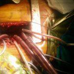 Dr. Prabhuswamy-srurgery-1